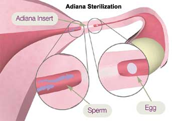 adiana, hysteroscopic sterilization, essure