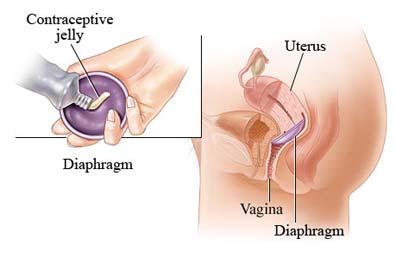 diaphragms, cervical caps, spermicide, contraception, TSS