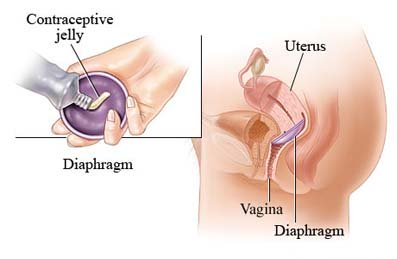 diaphragms, cervical caps, spermicide, contraception, TSS