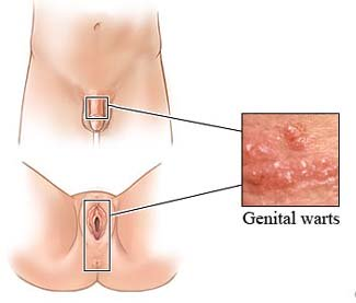 genital warts, HPV, human papillomavirus, cervical cancer, cryotherapy
